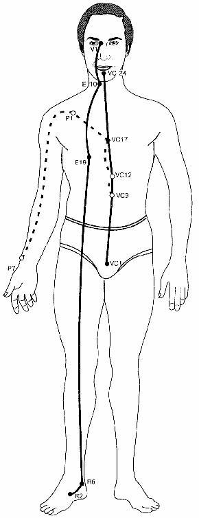 История болезни по инфекции коклюш